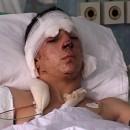 Miloš Aćimović u bolnici